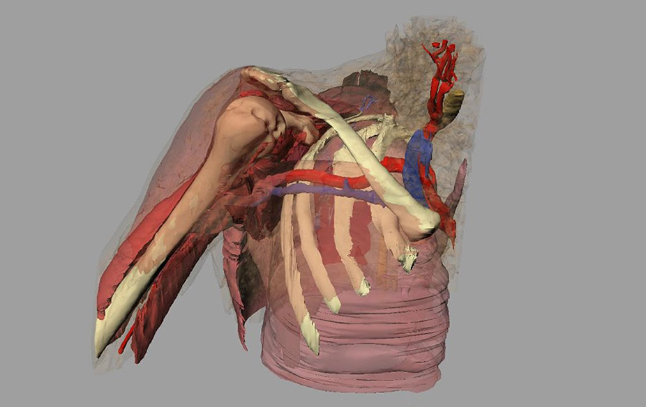 Anatomical data visualisation example